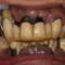 残せる歯は残し、必要最低限にインプラントを減らす