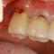 【過去を振り返る】奥歯の歯ぐきの腫れ(ハレ)について【分岐部病変】
