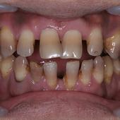 【過去を振り返る】「あの時、多くの歯を抜かなくてよかった」と言われています