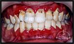 【軽度】歯医者が怖くて通院せず、歯周病治療による審美的回復