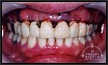 歯周病治療による審美的要求