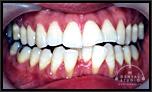 歯を抜かない矯正技術