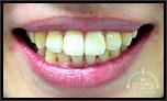 【左右非対称】歯を抜かない矯正技術