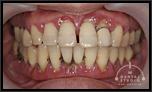 【重度歯周病】歯がぐらぐら治るために!触ると抜ける!型取りすら出来ない!Part2