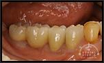 審美インプラントVol.12その3奥歯をセラミックで仕上げました。実は・・・