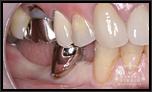 審美インプラントVol.13入れ歯では不安定なので、インプラントを希望したい!