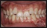 【出っ歯・乱ぐい】ほぼ成長が止まっている非抜歯の歯列矯正