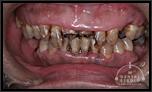 【中度】アゴの骨折、それによるアゴのズレ さらに歯周病・ひどい虫歯による歯の崩壊