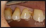 【中度】奥歯の歯ぐきの変化