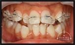 【出っ歯・乱ぐい】成長期すぎての非抜歯矯正技術