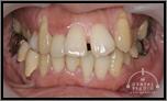 【受け口】上アゴが広がり鼻腔の改善、顎関節症改善へ そして、虫歯治療・神経治療も改善へ(非抜歯)