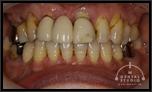 審美インプラントVol.20 前歯のブリッジの歯が完全に1本抜けている事例