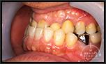 【受け口】歯周病軽度、歯槽膿漏、神経の治りが悪い、など等含め受け口も治してほしい!! 「骨切り無し」で治療した事例