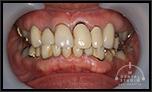 歯が割れたり、以前に噛み合わせ治療を受けたが、 不快すぎて辛いです。上下左右の歯の数が違い 噛み合わせが狂っている症例