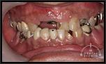 歯の崩壊 歯がボロボロ!ガタガタ!