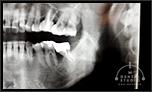 重度歯周病に対する骨造成手術(部分的重度)