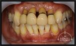 抜歯せず、歯を少しでも美しく延命させれたら