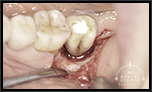 【過去を振り返る】1本の奥歯だけが重度の歯周病。しかし、ほとんど骨が無くても、 骨再生をさせて噛めるまでに回復する(部分的重度歯周病)