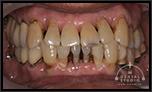 【過去を振り返る】15年前、あのまま待っていたら。あのまま放置していたら。決断が遅れていたら。この歯はとっくに失っていた!!