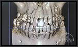 CTから視る!!非抜歯矯正と「中等度の歯周病」「神経治療」「変色している緑色の乳歯」