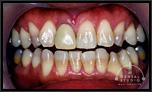 歯の色と形が気になるのですが!