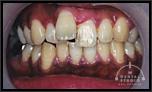 1本だけの出っ歯を治したいです!
