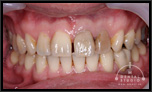 オールセラミッククラウンによるすきっ歯の治療