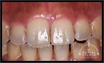 ホワイトニングなしの場合の審美歯科