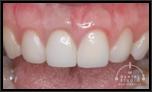 歯ぐきの腫れと出血のためオールセラミッククラウンからオールセラミッククラウンへ