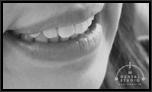 さらに個性を際立たせるためにタレントのように歯を白くしたい!!