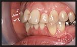 出っ歯を治したい!!partII