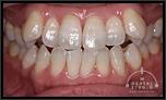 歯根が短いため、矯正治療を断られました・・・