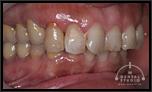 かみ合わせと前歯のねじれと不揃いが気になります。