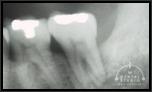 レントゲンから見る歯周病の説明・事例