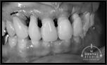 歯の動揺と向き合う