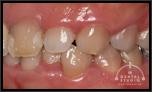 【軽度】昔から歯ぐきが大きいのでコンプレックスです