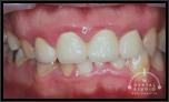【軽度】歯ぐきが腫れすぎて、歯みがきが怖い!!