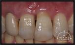 【軽度】前歯がグラつき、歯ぐきも腫れています。