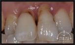 【中度】前歯・歯周病による動揺と口臭が気になります!