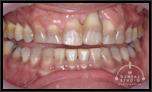 【中度】前歯3本がグラつき、その内1本はひどいことになっているのですが、キレイに戻せますか?