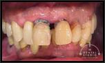 【重度】歯周病が完治後、おもちも食べれるし、さらに高血圧だった内科的症状も安定してくるという状況に