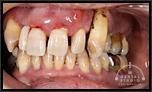 審美インプラントVol.05 治療プロセスも美しく仕上げるインプラント技術
