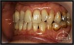 部分的に歯列を変えたい!!