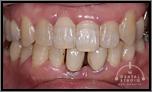 【左右非対称】下の歯が1本足りません!