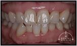 【左右非対称】上顎の歯が1本足りない!?だから1本増やしました。