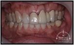 【左右非対称】CAになるために白い歯に憧れて時間もテーマに