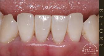 歯茎 の 腫れ 膿 の 出し 方
